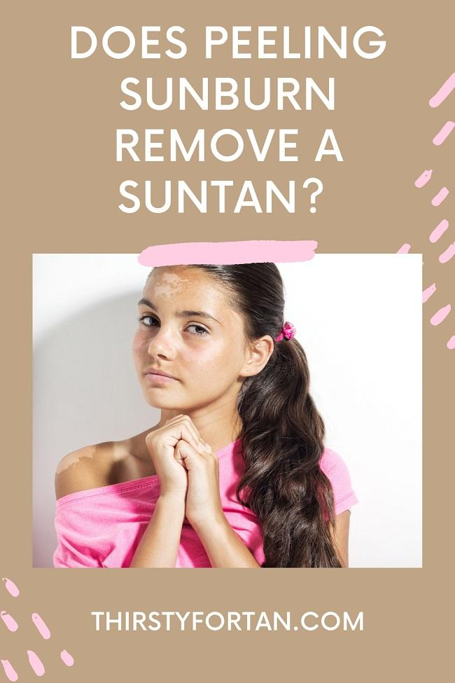 Does Peeling Sunburn Remove A Suntan pin by ThirstyTorTan