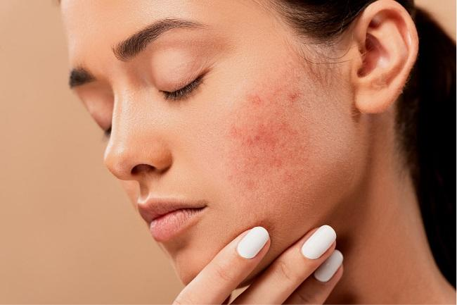Does Exfoliating Help with Acne featured