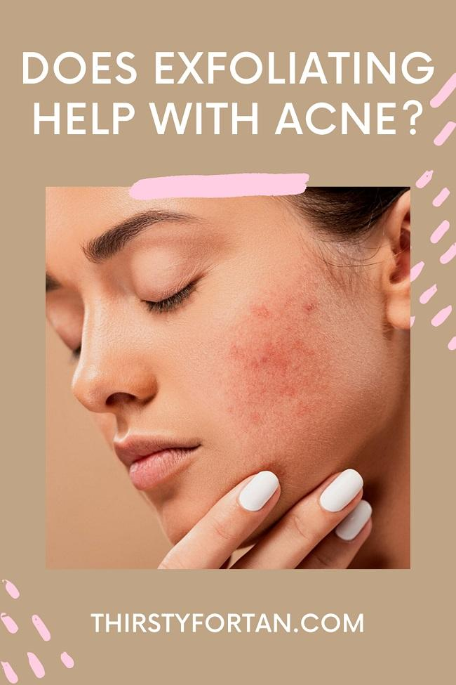 Does Exfoliating Help with Acne pin by ThirstyForTan